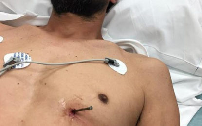 52 year Old Man Appeared in a Hospital with an Accidentally Pierced 3.5 inch Nail Near His Heart