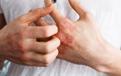 5 Unusual Causes of Eczema & How To Get Relief Naturally