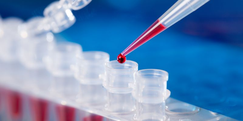 1.2 million PCR tests conducted in SL